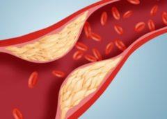 Χοληστερόλη: πώς προκαλεί καρδιακή νόσο